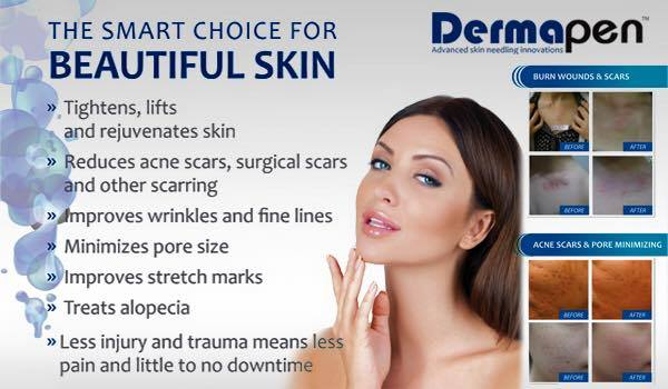 dermal-needling